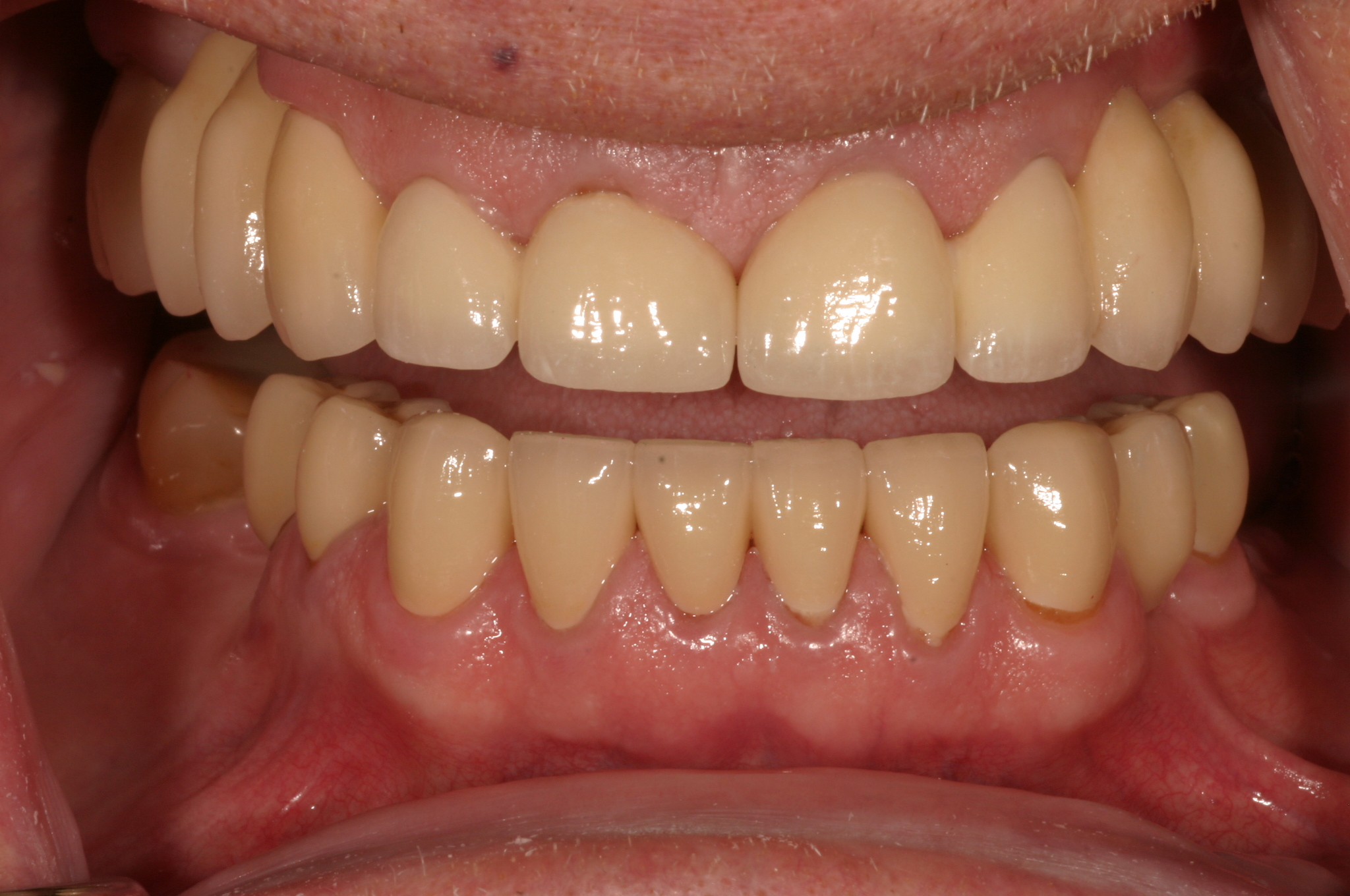 Before and After Dental Photos - New Oxford - Dentistry on the Square